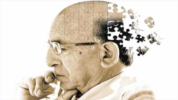 alzheimer la benh gi nguyen nhan co che va dau hieu nhan biet 2 - Alzheimer là bệnh gì? Nguyên nhân, Cơ chế và Dấu hiệu nhận biết