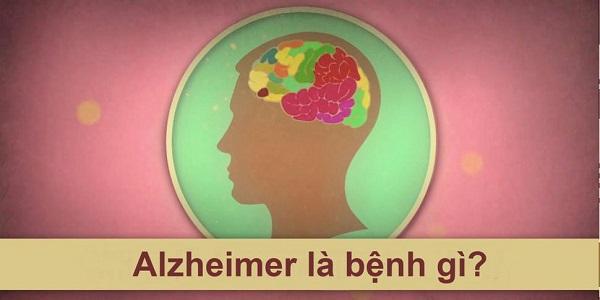 alzheimer la benh gi nguyen nhan co che va dau hieu nhan biet - Alzheimer là bệnh gì? Nguyên nhân, Cơ chế và Dấu hiệu nhận biết