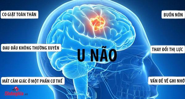 benh u nao la gi tong hop cac thong tin ve benh u nao tu a den z 1 - Bệnh u não là gì? Tổng hợp các thông tin về bệnh u não từ A đến Z