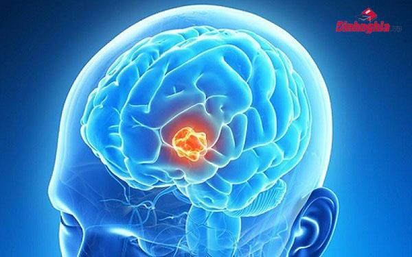 benh u nao la gi tong hop cac thong tin ve benh u nao tu a den z - Bệnh u não là gì? Tổng hợp các thông tin về bệnh u não từ A đến Z