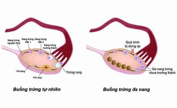 buong trung da nang la gi nguyen nhan dau hieu cach dieu tri 2 - Buồng trứng đa nang là gì? Nguyên nhân, Dấu hiệu, Cách điều trị