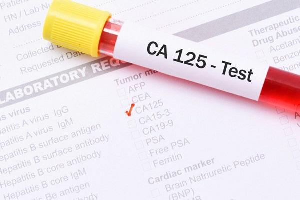 chi so ca 125 la gi nhung truong hop nao can xet nghiem ca 125 - Chỉ số Ca 125 là gì? Những trường hợp nào cần xét nghiệm CA 125?