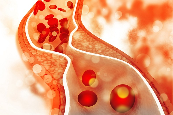 cholesterol la gi cholesterol cao nguy hiem nhu nao 1 - Cholesterol là gì? Cholesterol cao nguy hiểm như nào?