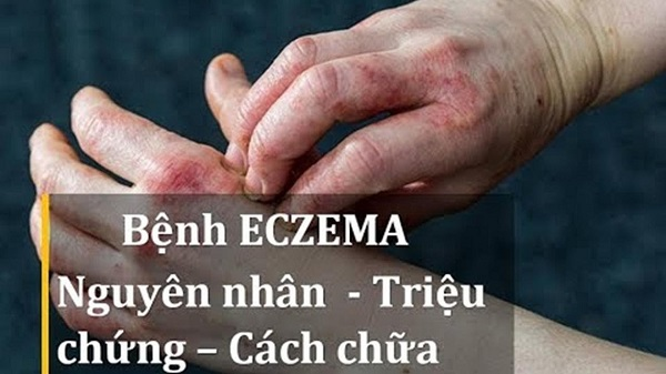 eczema la gi nguyen nhan trieu chung cach dieu tri benh eczema - Eczema là gì? Nguyên nhân, Triệu chứng, Cách điều trị bệnh Eczema