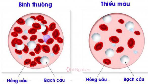 giam hong cau nguyen nhan dau hieu va cach dieu tri 1 - Giảm hồng cầu: Nguyên nhân, Dấu hiệu và Cách điều trị