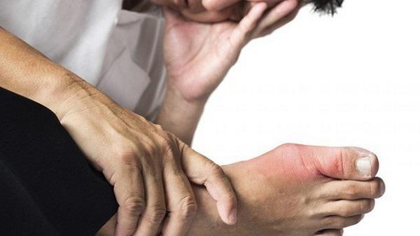gut la benh gi nguyen nhan trieu chung va cach chua nhanh nhat 1 - Gút là bệnh gì? Nguyên nhân, Triệu chứng và Cách chữa nhanh nhất!