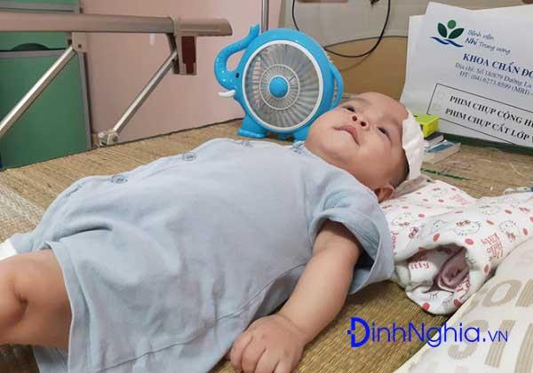 nao ung thuy la benh gi tong hop thong tin ve benh nao ung thuy 2 - Não úng thủy là bệnh gì? Tổng hợp thông tin về bệnh não úng thủy