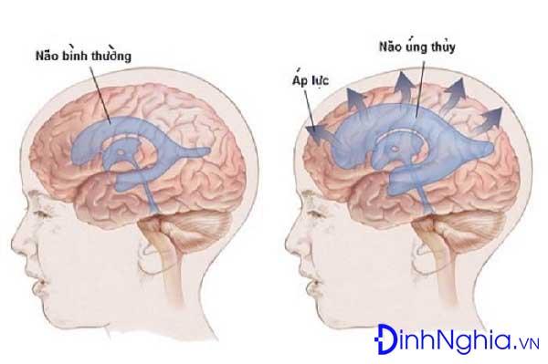 nao ung thuy la benh gi tong hop thong tin ve benh nao ung thuy - Não úng thủy là bệnh gì? Tổng hợp thông tin về bệnh não úng thủy
