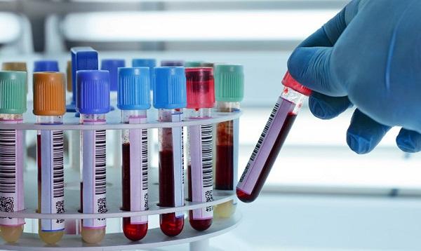 rbc la gi y nghia cua chi so rbc trong mau 1 - RBC là gì? Ý nghĩa của chỉ số RBC trong máu