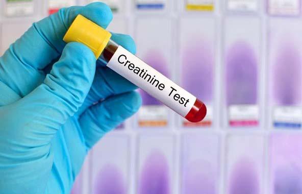 tim hieu creatinin la gi va khi nao nen thuc hien xet nghiem creatinin 1 - Tìm hiểu Creatinin là gì và khi nào nên thực hiện xét nghiệm Creatinin