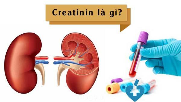 tim hieu creatinin la gi va khi nao nen thuc hien xet nghiem creatinin - Tìm hiểu Creatinin là gì và khi nào nên thực hiện xét nghiệm Creatinin