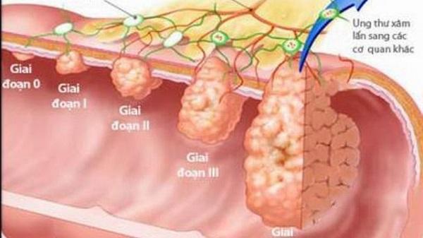 ung thu da day di can tong hop cac cau hoi thuong gap 2 - Ung thư dạ dày di căn: Tổng hợp các câu hỏi thường gặp