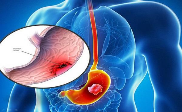 ung thu da day di can tong hop cac cau hoi thuong gap 3 - Ung thư dạ dày di căn: Tổng hợp các câu hỏi thường gặp